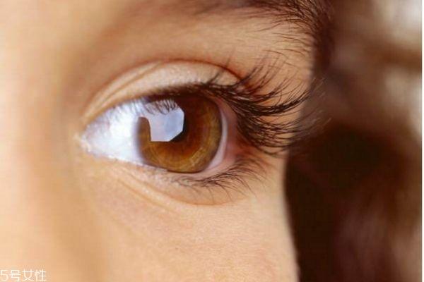 麦粒肿反复发作怎么办 治疗针眼注意