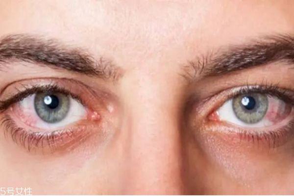 眼睛刺痛是怎么回事 眼睛总是发痒还有刺痛感