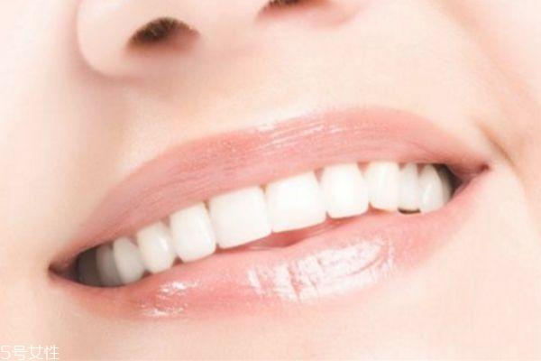 牙齿美容冠可以保持多久 影响因素不同