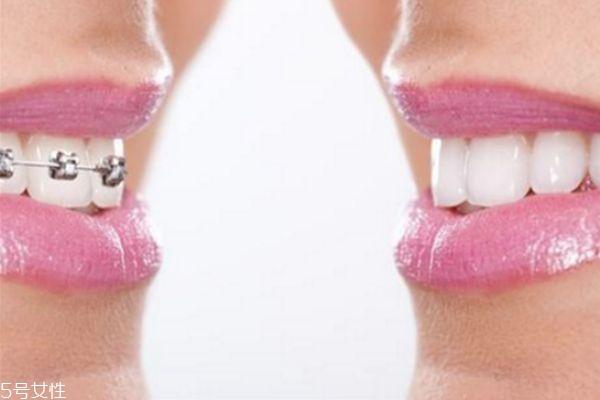美容冠矫正牙齿好不好 美容冠矫正牙齿好处和坏处