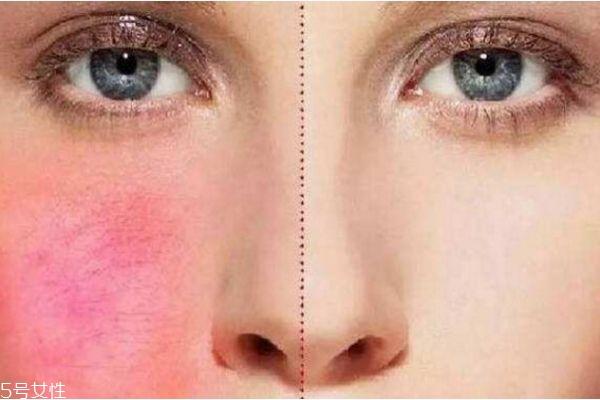 红血丝该如何治疗 脸上红血丝的解救办法