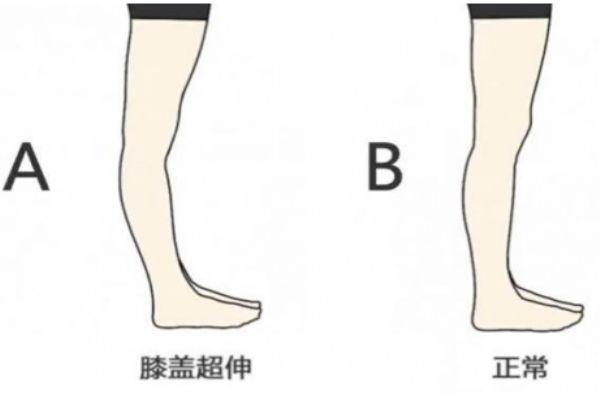 膝关节超伸的表现 快来自测一下把
