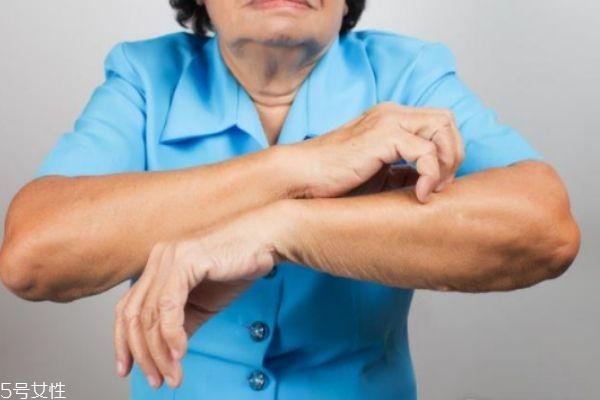 一到冬天皮肤就发痒是皮肤病吗 可能和这有关