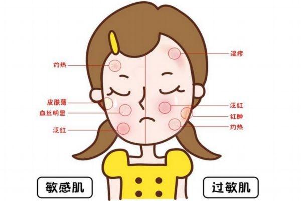 敏感肌肤怎么修复好 敏感皮肤需要注意哪些事项