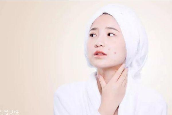 敏感肌肤会自己修复吗 如何消灭敏感肌肤