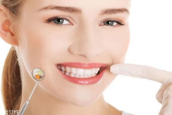 刷牙怎么让牙齿变白 去黄牙妙招