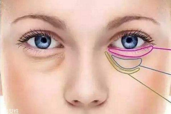 内切眼袋会不会影响视力 内切眼袋后如何消肿