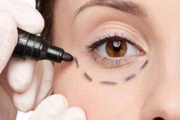 内切眼袋多久可以消肿 内切眼袋手术用拆线吗