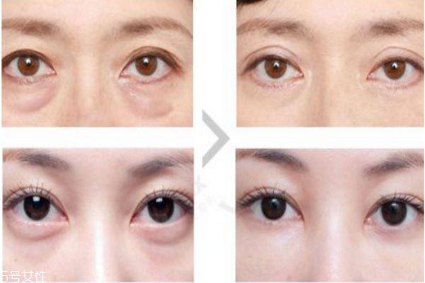 眼袋内切好还是外切好 去眼袋内切和外切区别