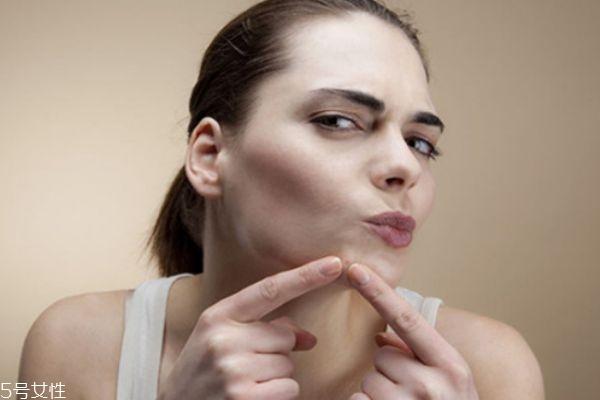 嘴巴周围总是长痘怎么办 从这三个方面改善