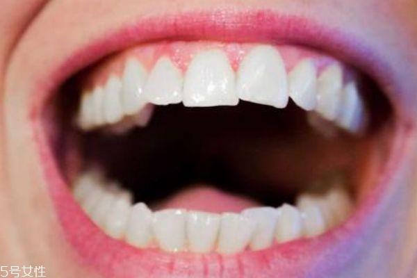 洗牙粉真的能洗白吗 洗牙粉的使用方法