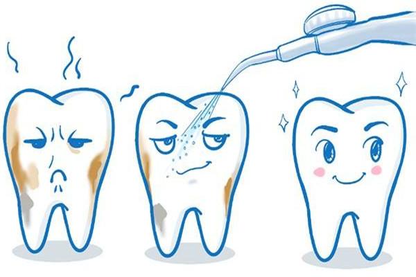 为什么洗牙有异物感 洗牙的误区