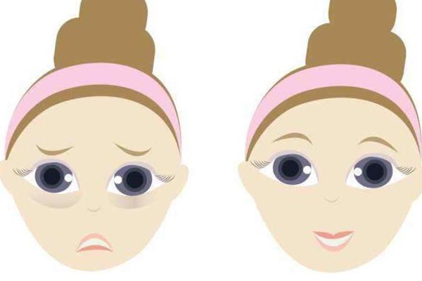 眼袋按摩可以消除吗 眼袋按摩方法