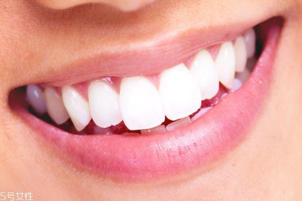 冷光美白牙齿好不好 冷光美白仪副作用
