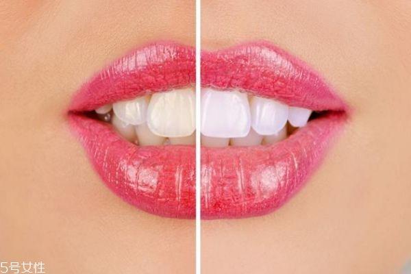 冷光美白牙齿能管多久 家用冷光美白仪的危害