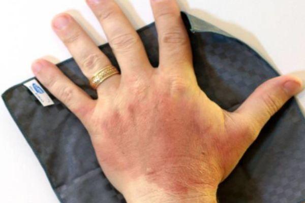 烫伤后怎么处理不留疤 烫伤后应急处理