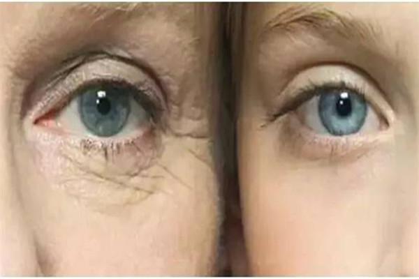 二十岁用什么眼霜比较好 二十岁用眼霜早吗