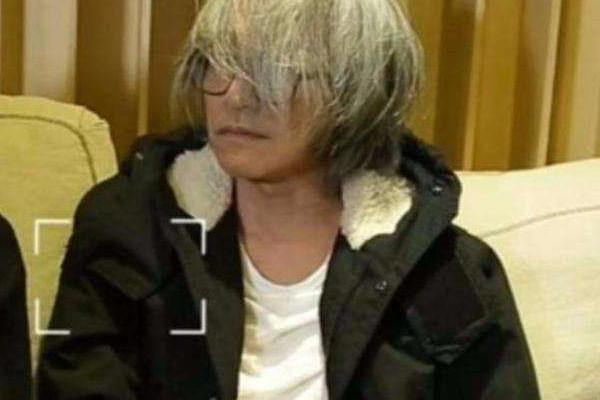 白头发可以洗黑吗 白头的形成