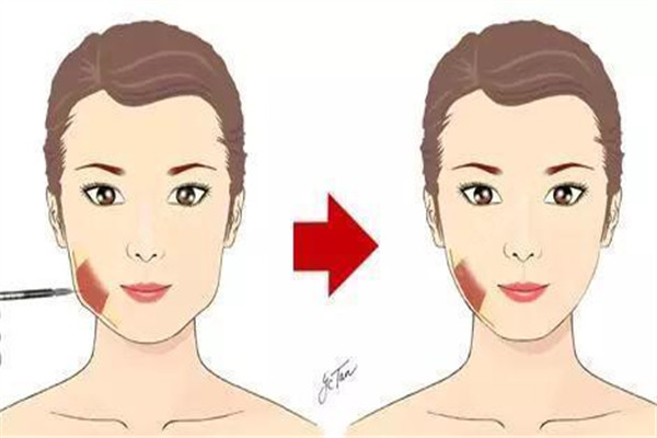 瘦脸针可以维持几年 瘦脸针持久性