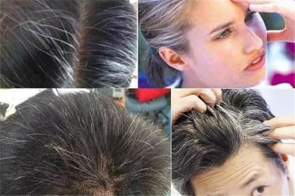 头发爱出油是怎么回事 解放方法是这样