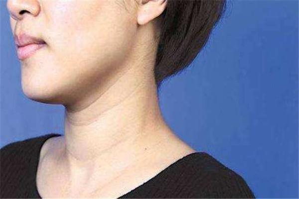颈纹如何消除 颈纹这样消除