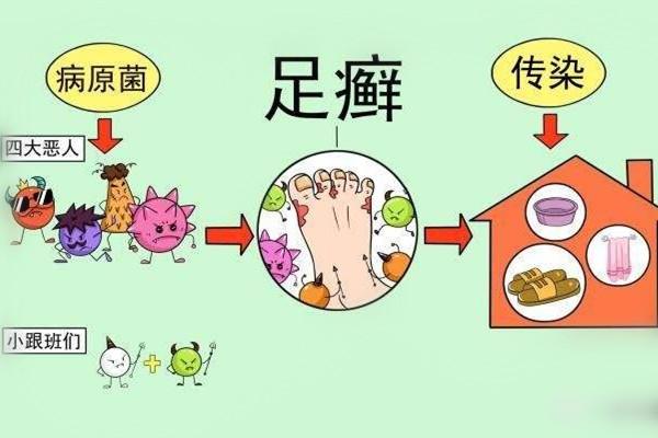灰指甲症状是什么 原因是这样