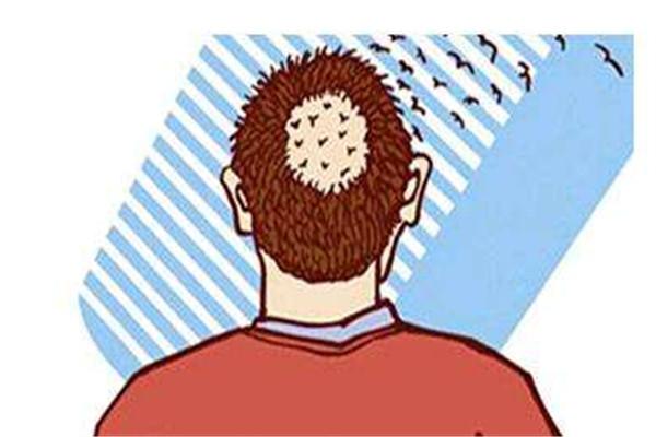 植发之后忌口吗 植发之后要注意什么