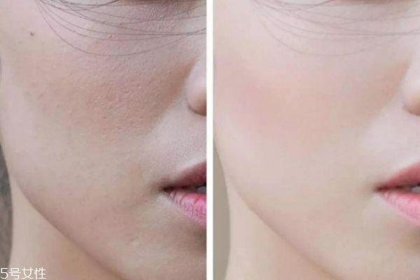 脸部皮肤粗糙怎么办 脸部皮肤粗糙如何改善