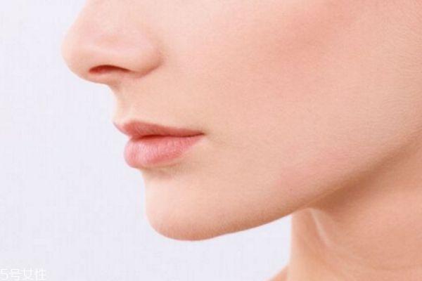 如何消除鼻翼两侧泛红 鼻翼泛红是什么原因