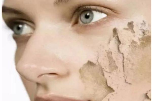 脸上容易浮粉为什么 怎么解决浮粉问题