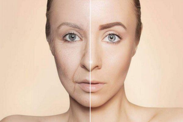 如何缓解皮肤衰老 皮肤衰老的原因