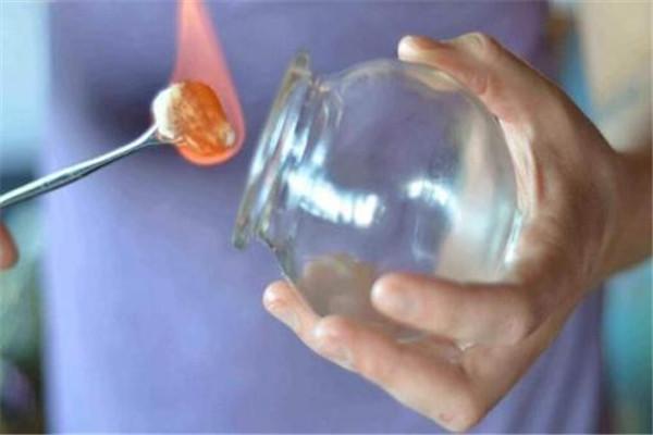 拔火罐不红是怎么回事 拔火罐为什么不红呢