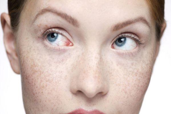 脸上有斑点用什么遮瑕效果好 口碑好的遮斑产品推荐