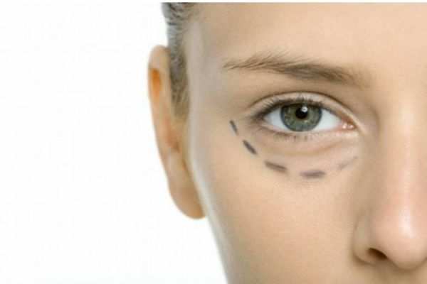 怎样去眼袋和黑眼圈 祛黑眼圈和眼袋的方法