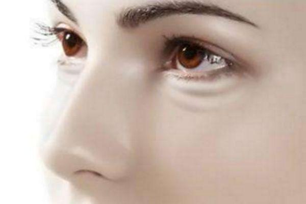 怎样才能有效去除眼袋黑眼圈 怎么有效去眼袋黑眼圈