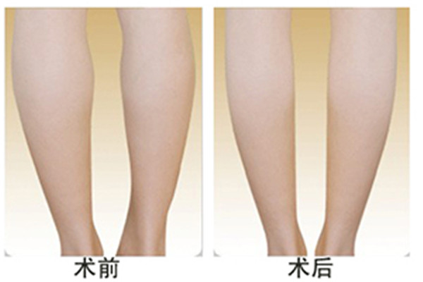 夏天打瘦腿针有副作用吗 夏天打瘦腿针好吗