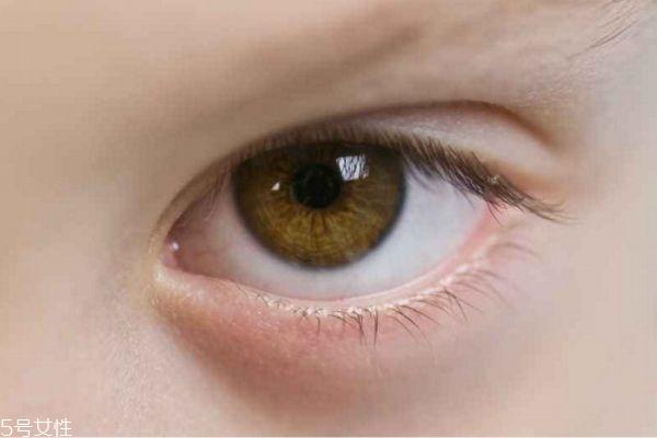 肿眼泡能消除吗 肿眼泡和脂肪眼肿区别