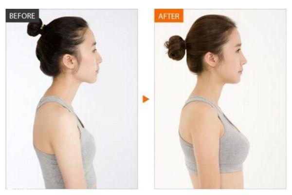 假体隆胸多久变软 怎样使假体隆胸手感更真实