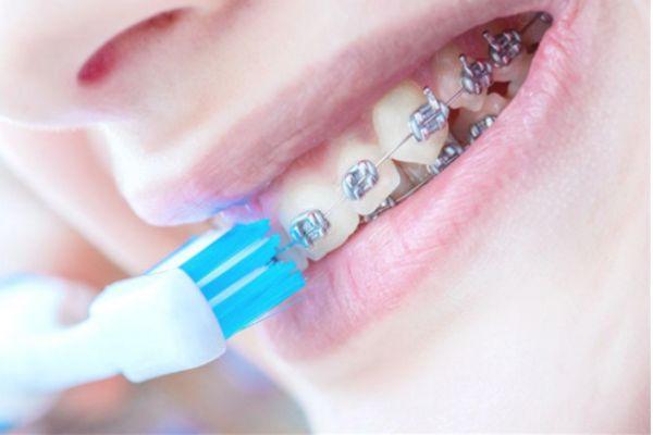 牙结石一定要洗牙吗 自己如何去除牙结石