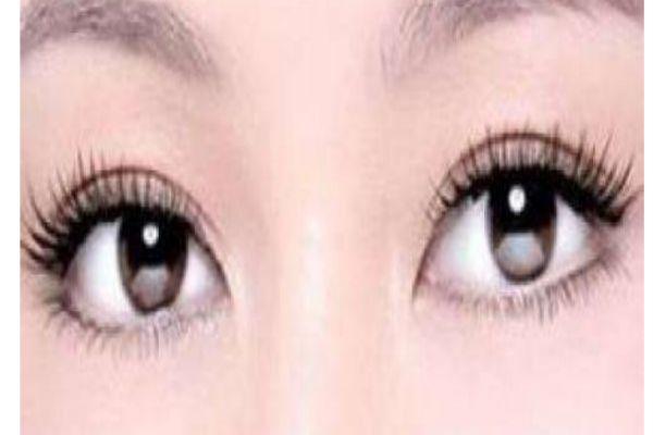 夏天适不适合割双眼皮 什么时候是割双眼皮最佳时间
