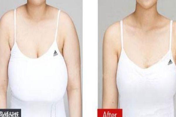 缩胸手术是什么 为什么要做缩胸手术