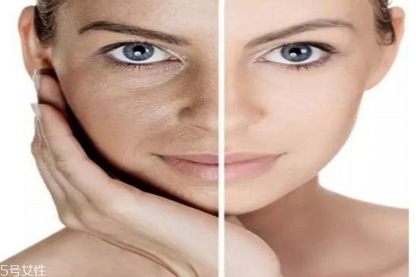 眼袋大是什么原因 眼袋下垂怎么消除
