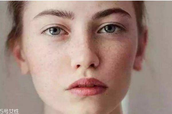活性斑怎么去除 去除活性斑的方法