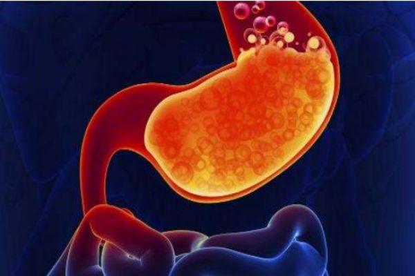 胃酸怎么办 胃酸过多的症状