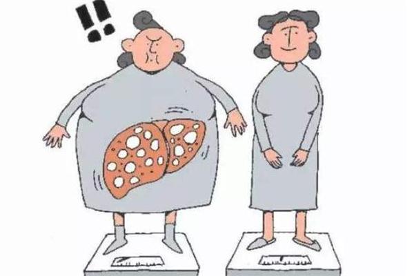脂肪肝跑步能降下来吗 脂肪肝跑步有用吗