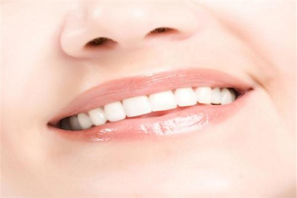 牙齿美容冠多少钱 牙齿美容冠是什么