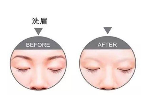 什么是激光洗眉呢 激光洗眉有什么好处呢