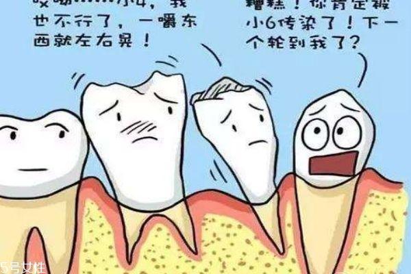 牙齿松动应该怎么办呢 牙齿为什么会松动呢