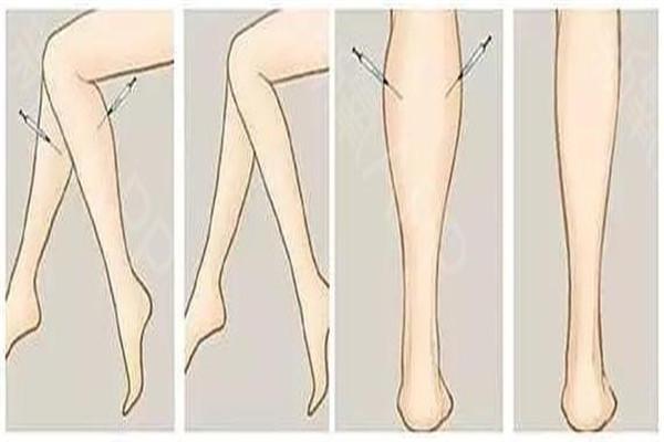 瘦腿针打几次可以永久 瘦腿针是永久的吗