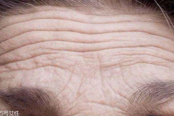什么是抬头纹呢 抬头纹是怎么形成的呢